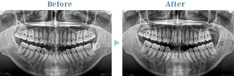 親知らずの抜歯 治療前後のレントゲン